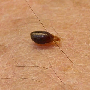 Bed Bug Distinction